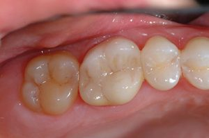 Capitola Dr. Halbleib CEREC Specialist crown 2 after