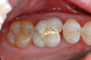 Capitola Dr. Halbleib CEREC Specialist crown 2 before